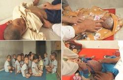 영양실조 북한어린이들, 그들은 정치를 모릅니다