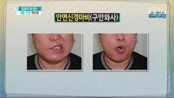 """오장육부의 거울, """"얼굴""""이 보내는 건강 이상 신호: 구안와사, 안면마비, 피부염, 얼굴색과 건강"""