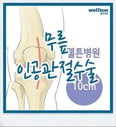 무릎인공관절수술 - 맞춤형 무릎으로 건강한 보행을!