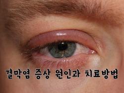 눈 다래끼?결막염?눈병? 빠르게 파악하고 치료하자!