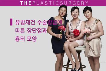 유방재건 수술방법 장단점 (유방암 복원수술후 흉터 포함)