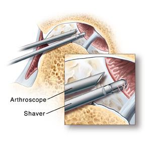 관절경(arthroscope), 세이버(shaver)