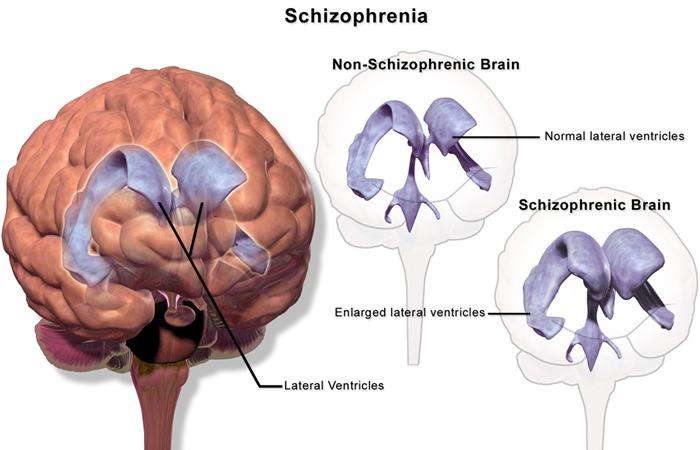 사진: 조현병의 증상은 뇌신경전달물질은 도파민의 이상도 원인으로 작용된다. 두뇌 촬영을 통하여 차이점이 계속 발견되고 있다. [조현병의 원인과 유전병 관계]