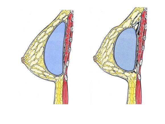 물방울가슴성형,가슴성형수술